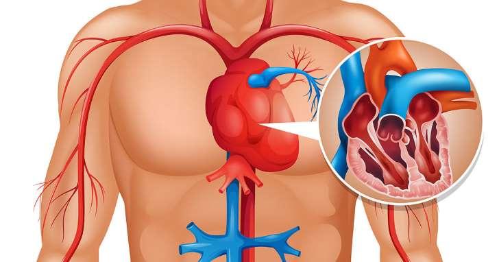 hjerteattack